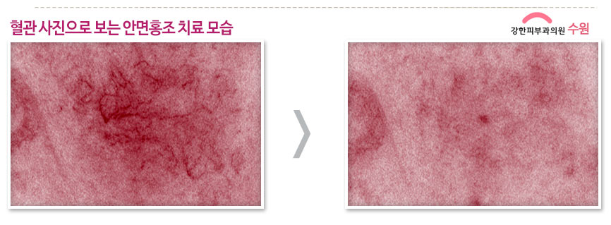 수원안면홍조치료효과