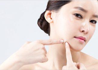 수원모낭염