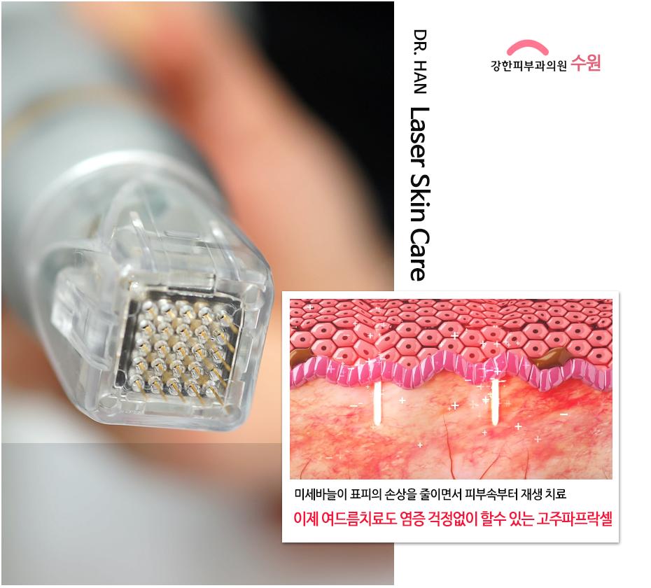 수원 고주파프락셀