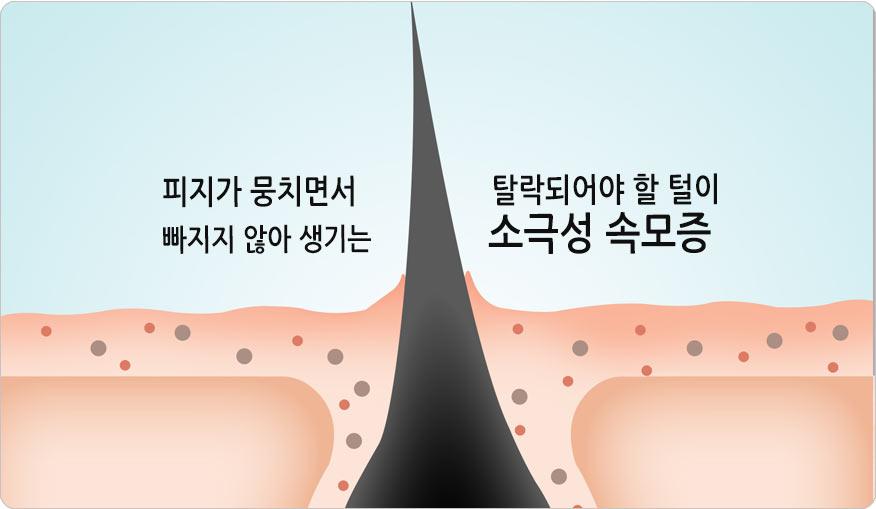 소극성 속모증 증상