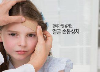 얼굴 손톱상처