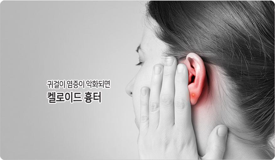 귀걸이염증이 켈로이드흉터