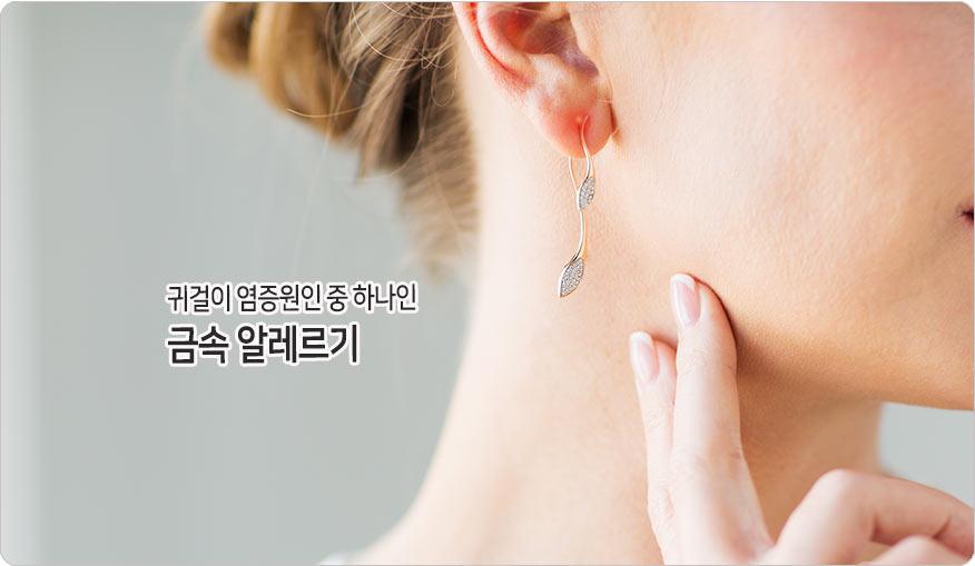 금속알레르기로인한 귀걸이염증