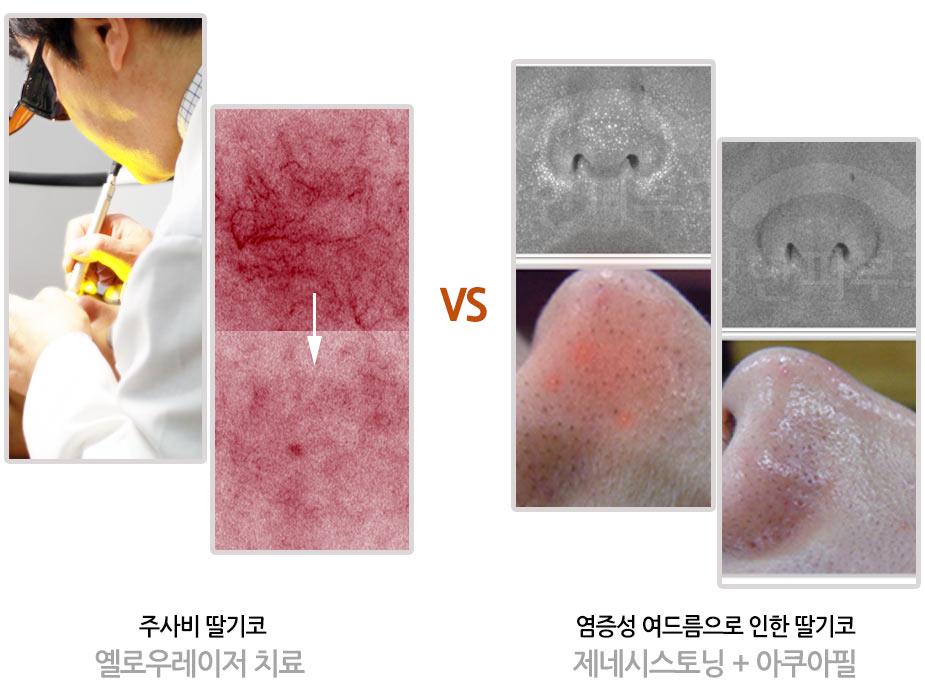 수원 딸기코치료