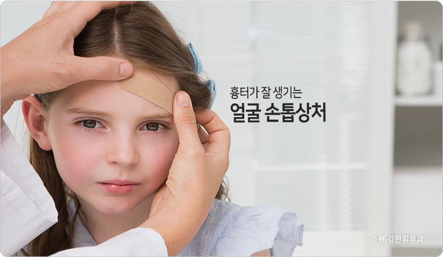 얼굴 흉터 원인