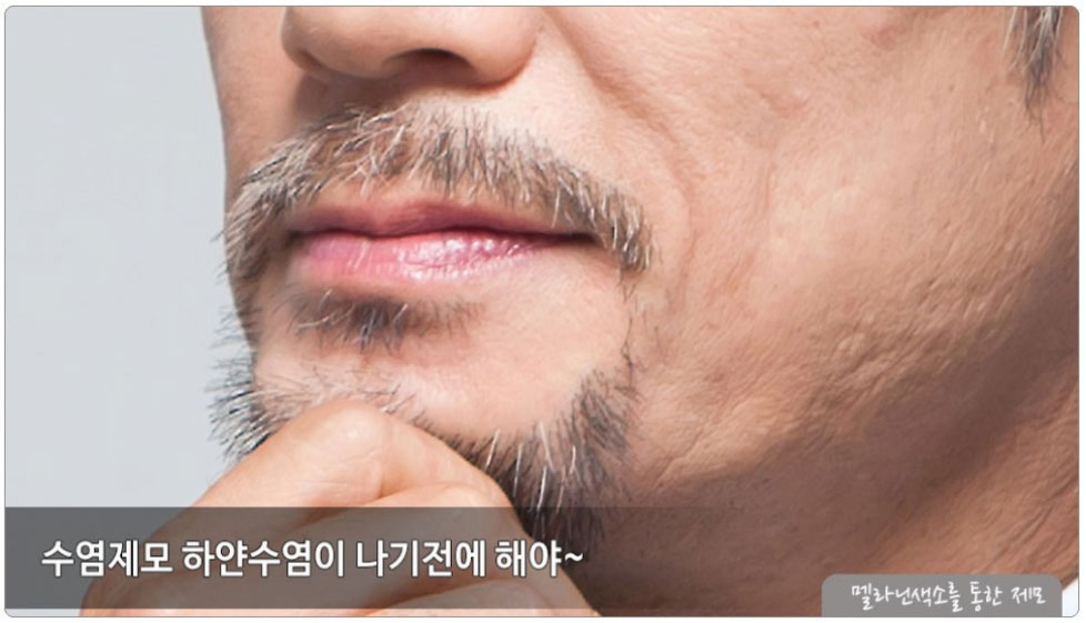 수염제모 흰수염 나기전에