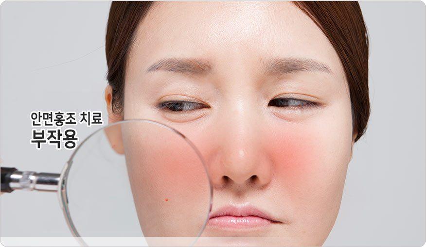 수원 안면홍조치료 부작용