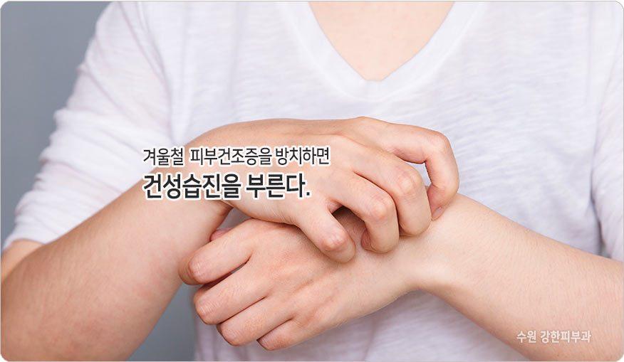 피부건조증 방치하면 건성습진