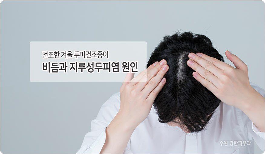 두피건조증