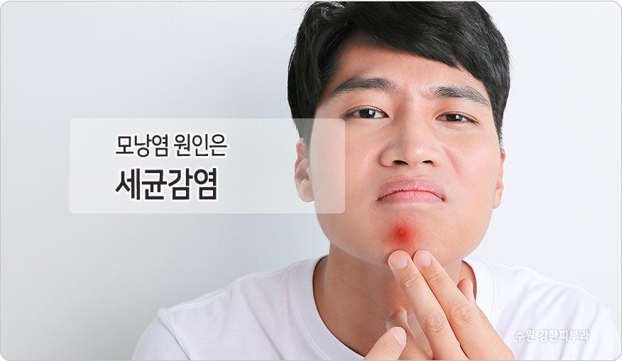 세균감염으로인한 모낭염
