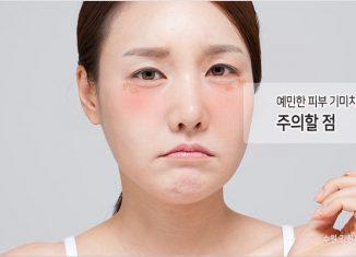 민감성피부 기미치료