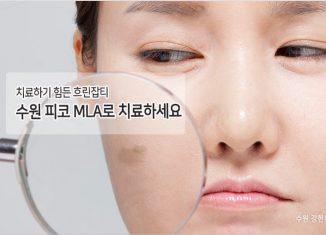 수원 흐린잡티치료