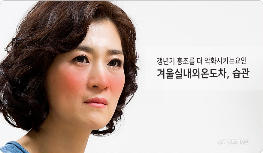 안면홍조악화원인