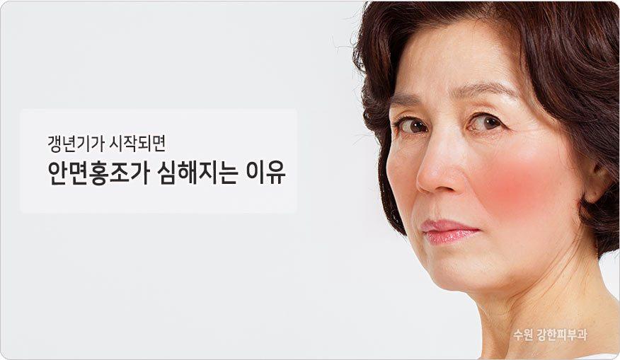 갱년기홍조 원인