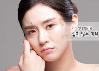 수원 기미잡티제거
