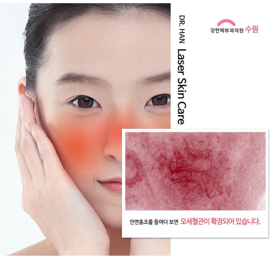 안면홍조 혈관확장