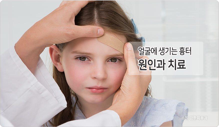 얼굴흉터 원인