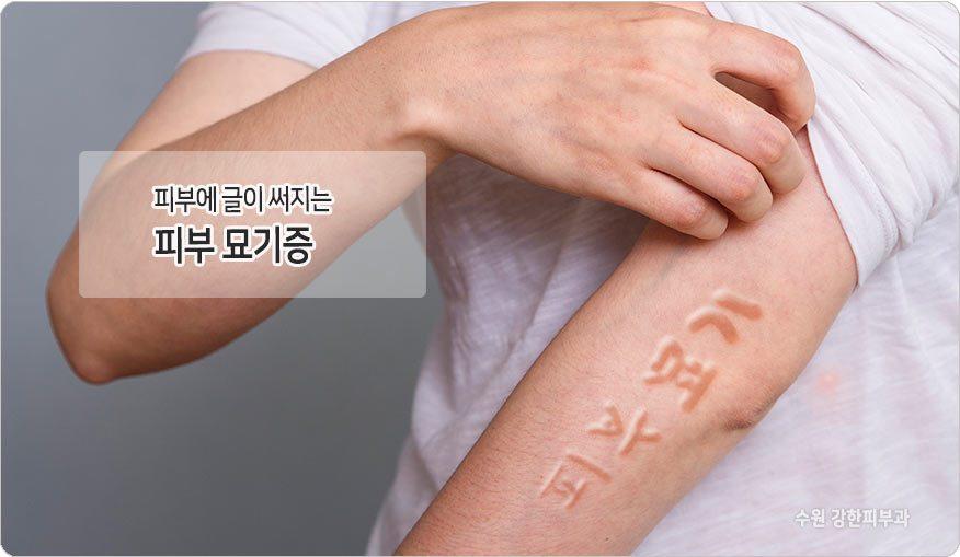 피부묘기증 원인