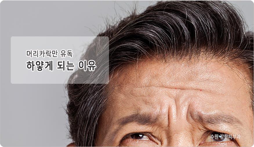 노화로인한 흰머리 이유