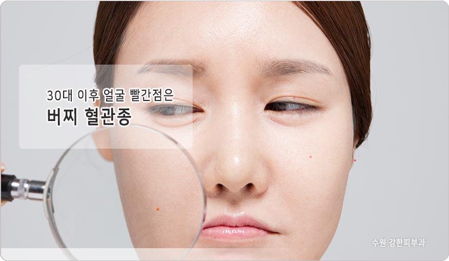 수원 버찌혈관종
