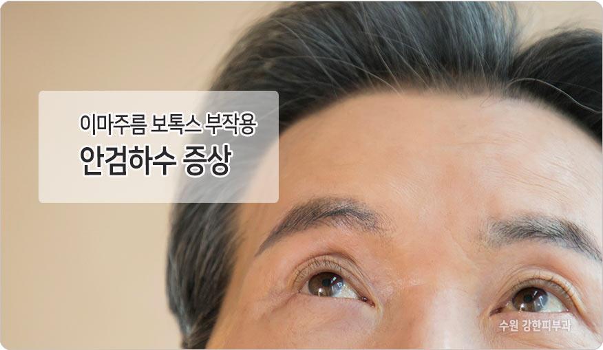 이마보톡스 안검하수