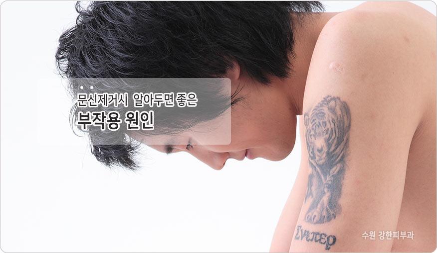 문신제거 부작용 이유