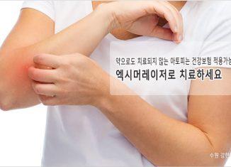 인계동 아토피치료