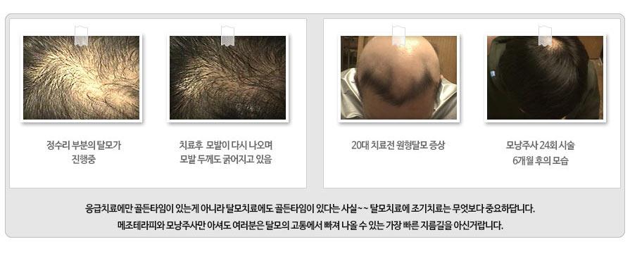 수원 원형탈모치료