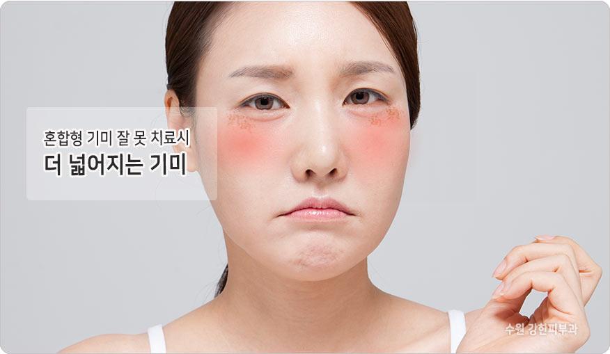 수원 기미치료 피부과