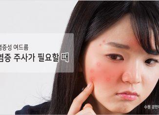수원 염증성 여드름치료
