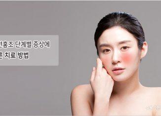 안면홍조 단계별 치료