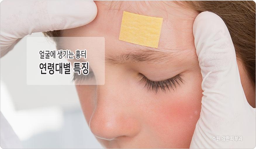 나이별 얼굴흉터