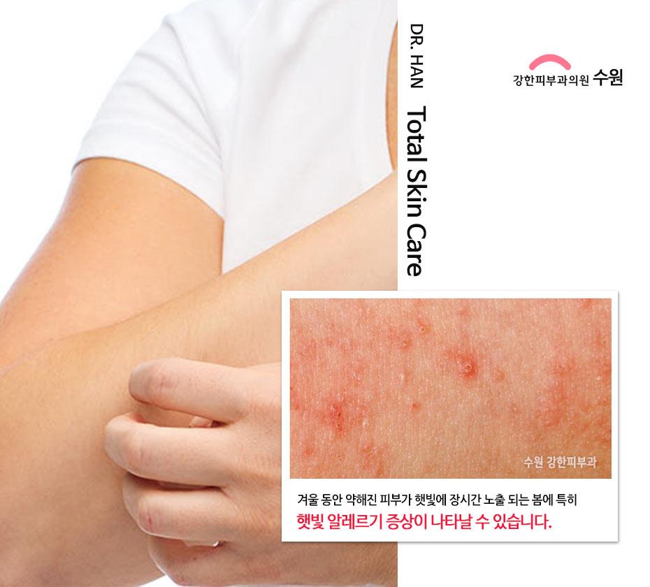 햇빛 알레르기 증상