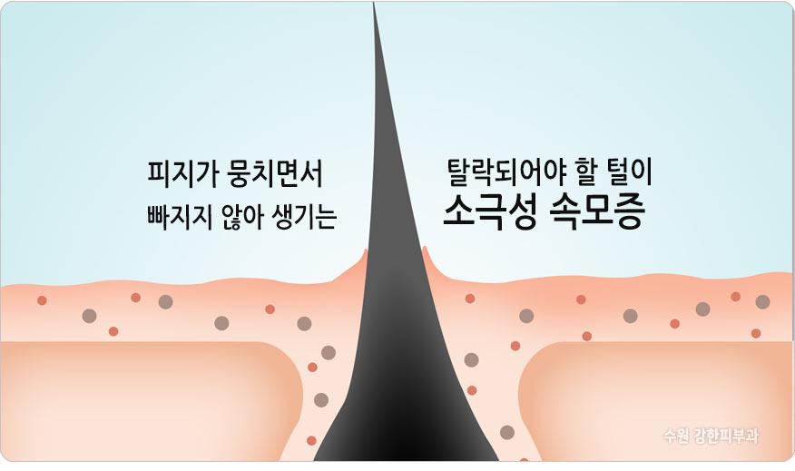 가시털정체증