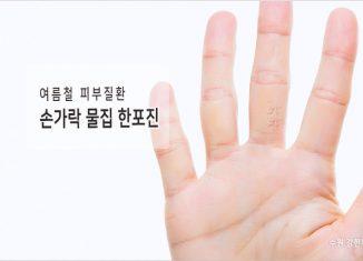 손가락 물집 한포진
