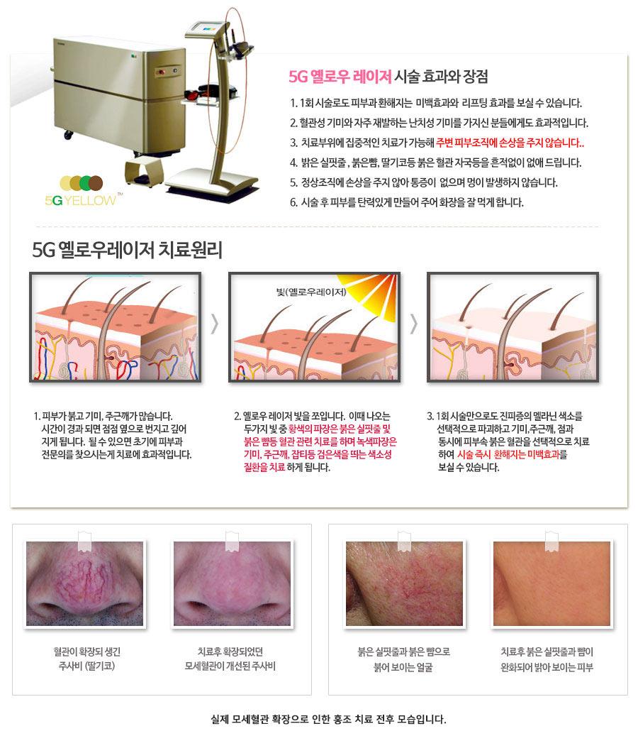 수원 안면홍조 치료모습