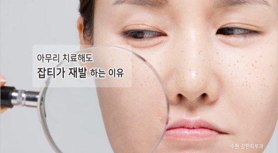 수원잡티 재발이유