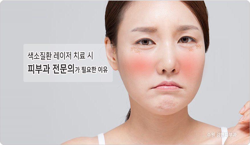얼굴 색소 레이저치료