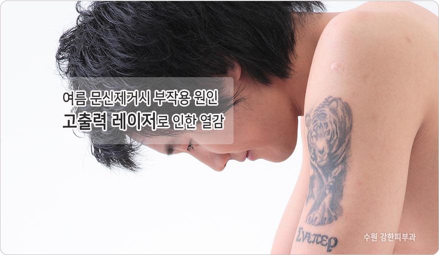 문신제거 부작용 원인