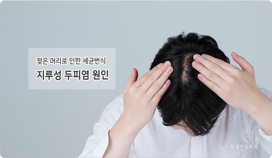 축축한 머리로 인한 두피염