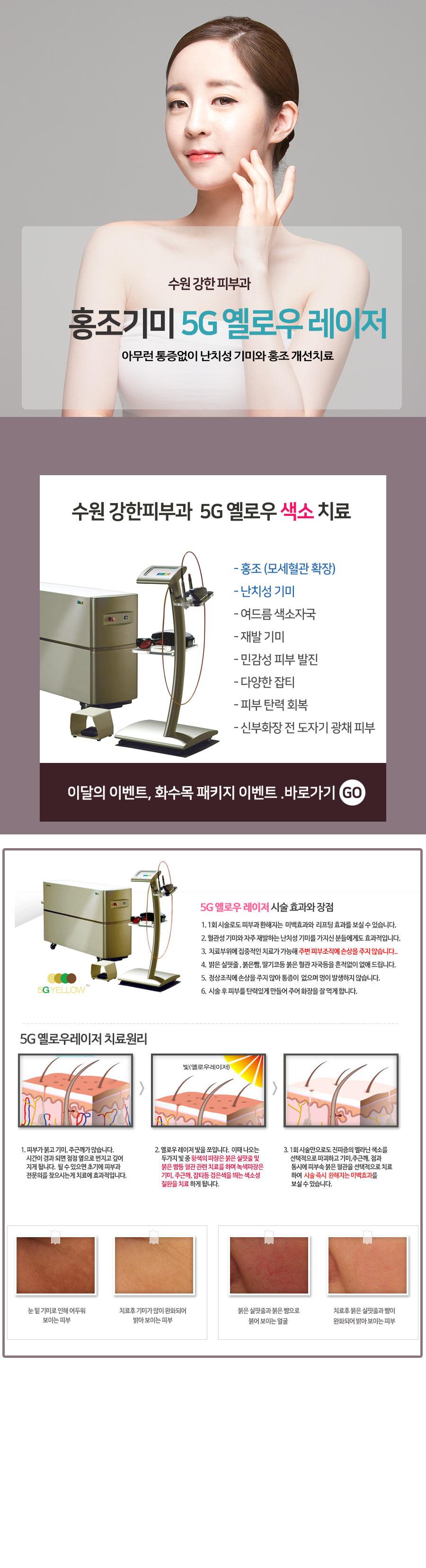 수원 혈관치료 레이저