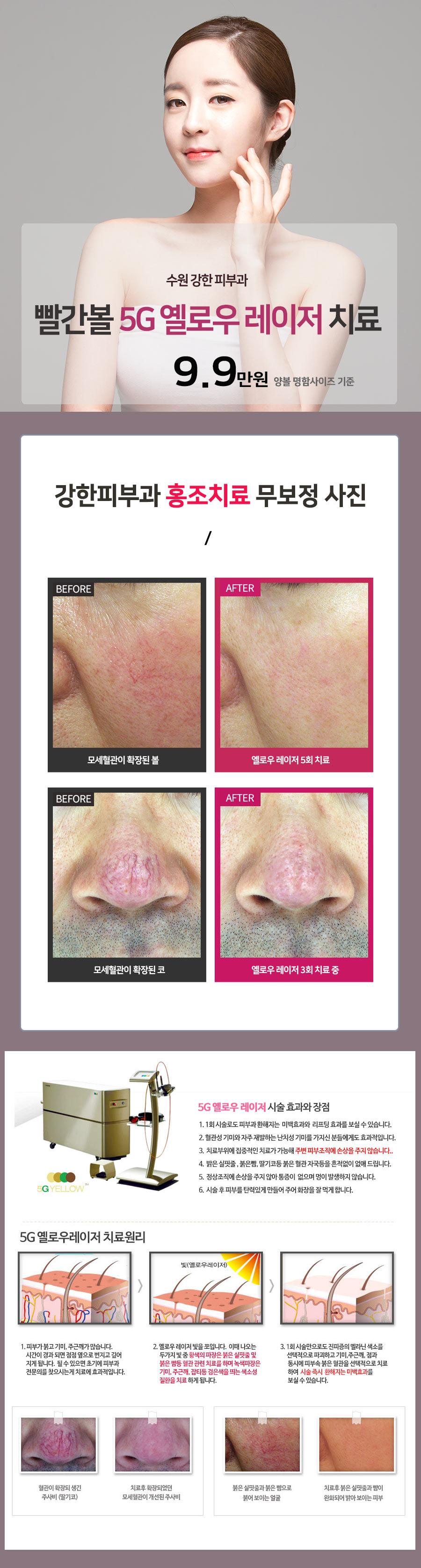 홍당무 얼굴 치료
