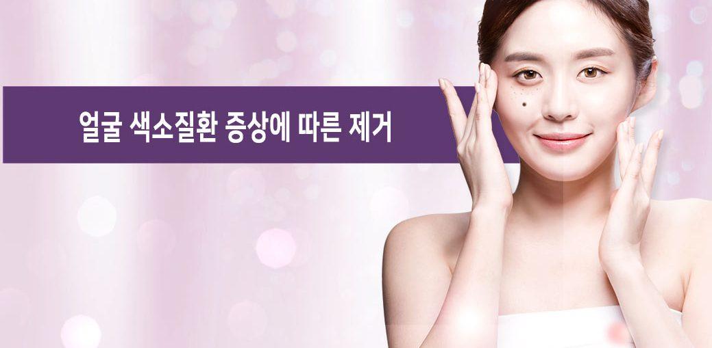 얼굴색소 증상별 치료방법