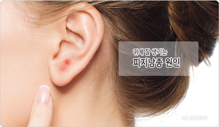 귀 피지낭종 원인