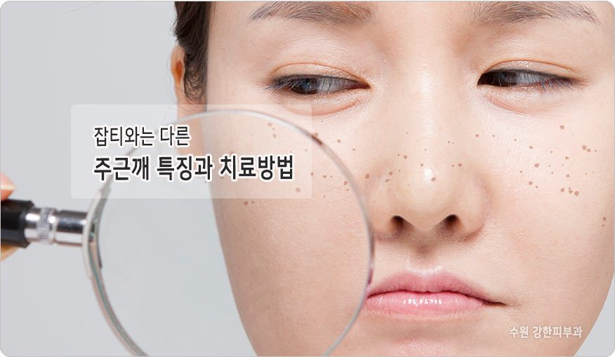 주근깨 제거 수원시청역 피부과
