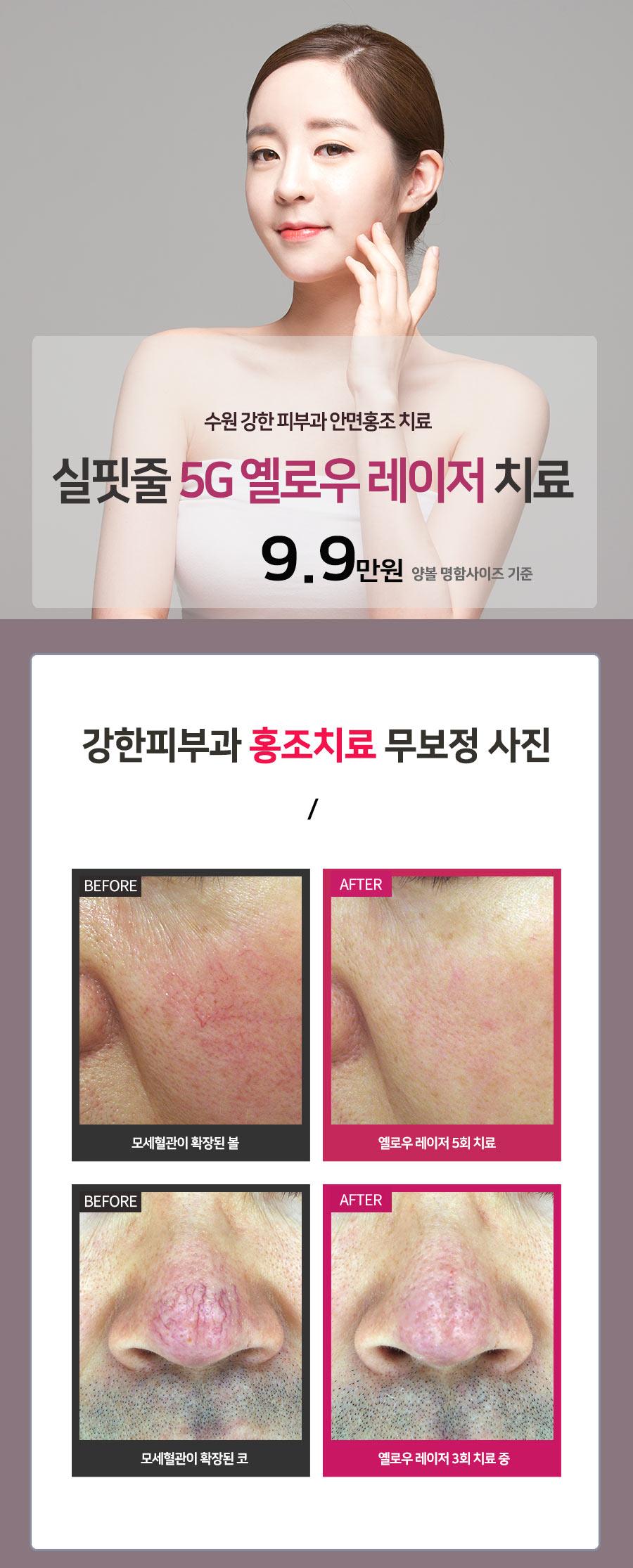 수원 홍조치료