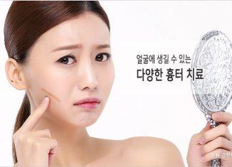 수원 얼굴흉터 치료