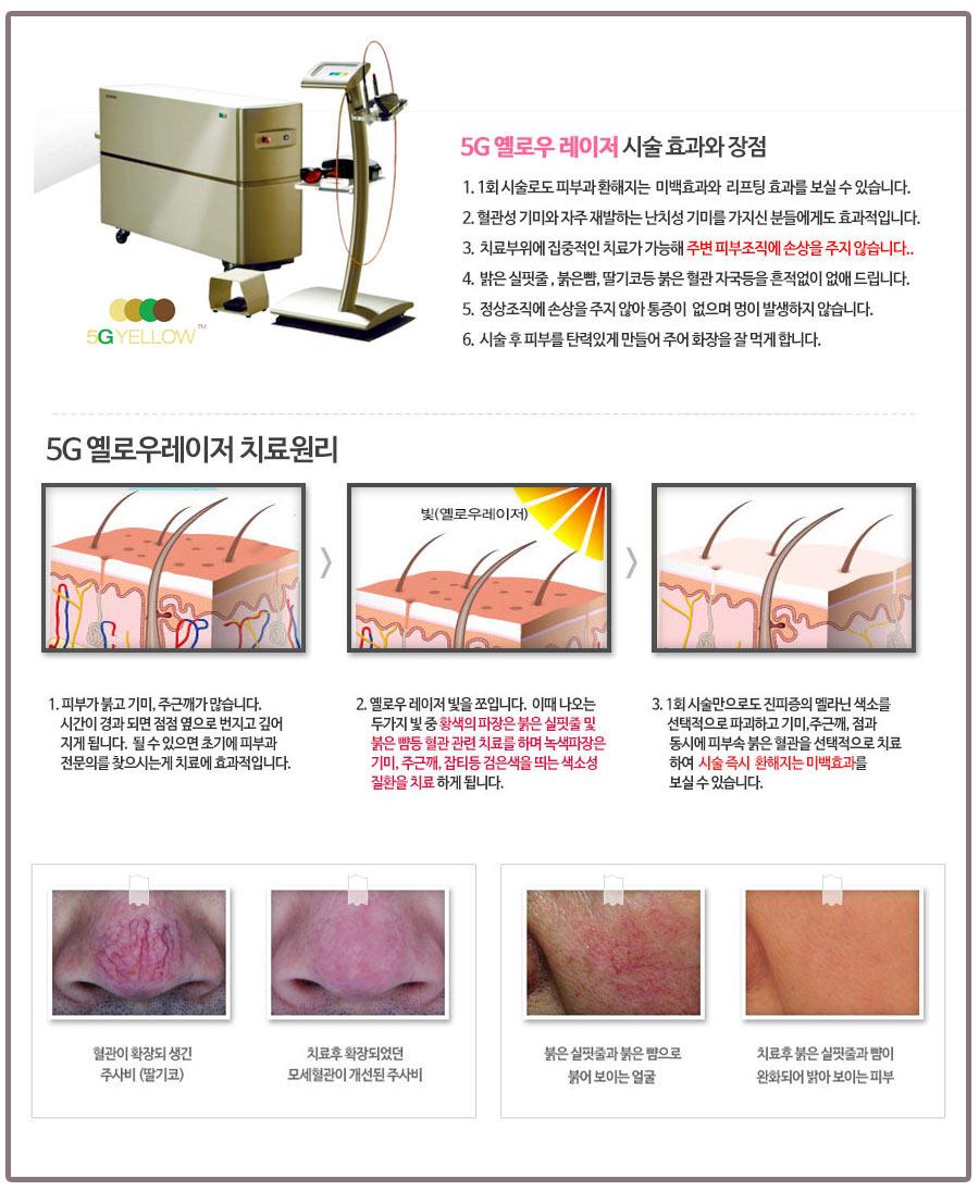 기미 홍조 치료
