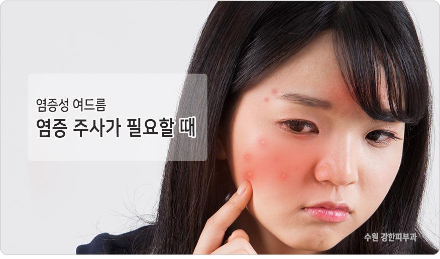 염증성여드름 염증주사