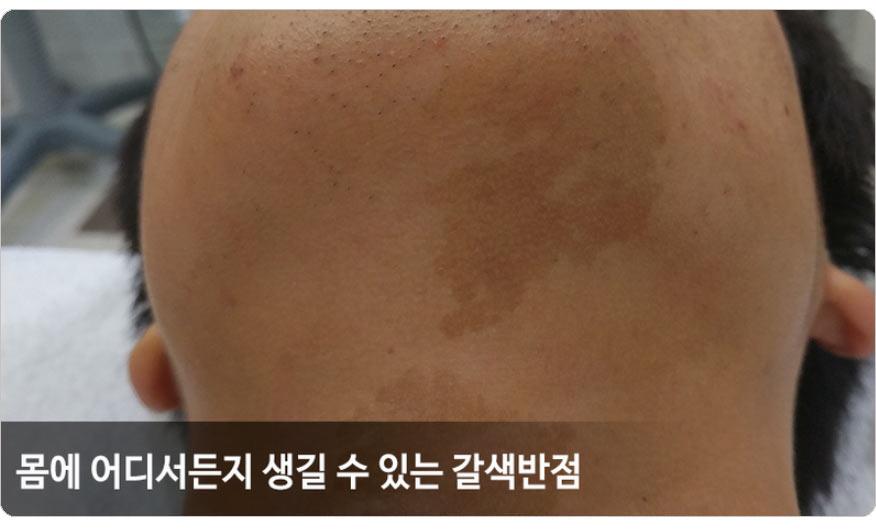 갈색반점 증상